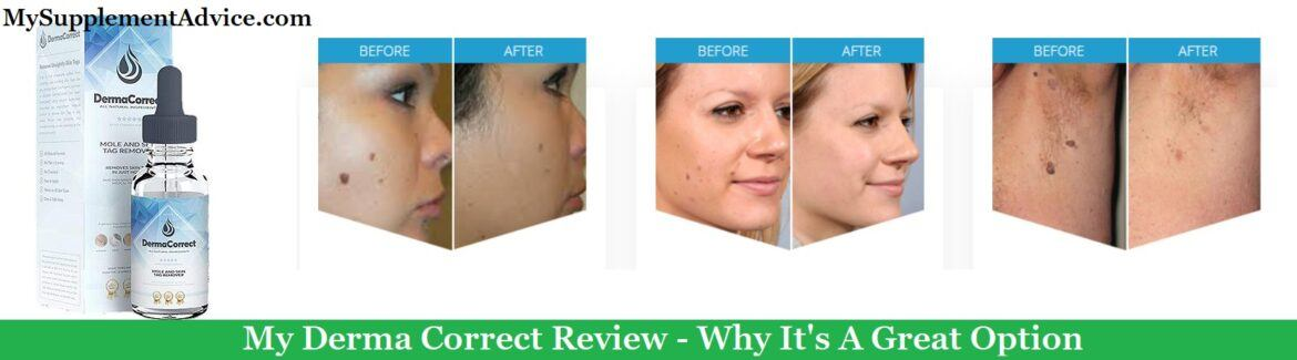 Is Derma Correct A Scam? My Review (2021)